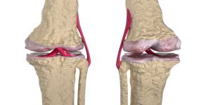 carlsbad-chiropractor-for-arthritis-pain