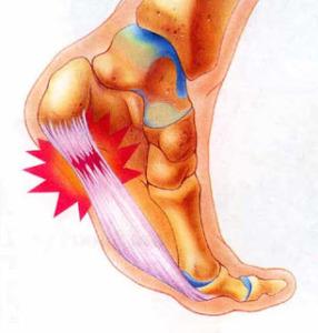 foot-pain-heel-pain
