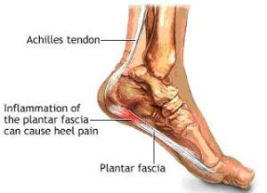 plantar-fasciitis-pain-relief