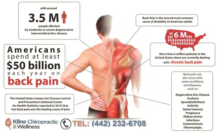 Back Pain Treatment in Carlsbad CA